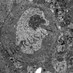 EM of neuroblast